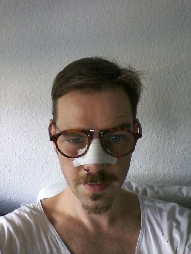 dennis broken nose metzler